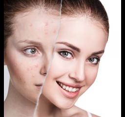 Pielęgnacja skóry problematycznej- ceny omawianych produktów zaczynają się od